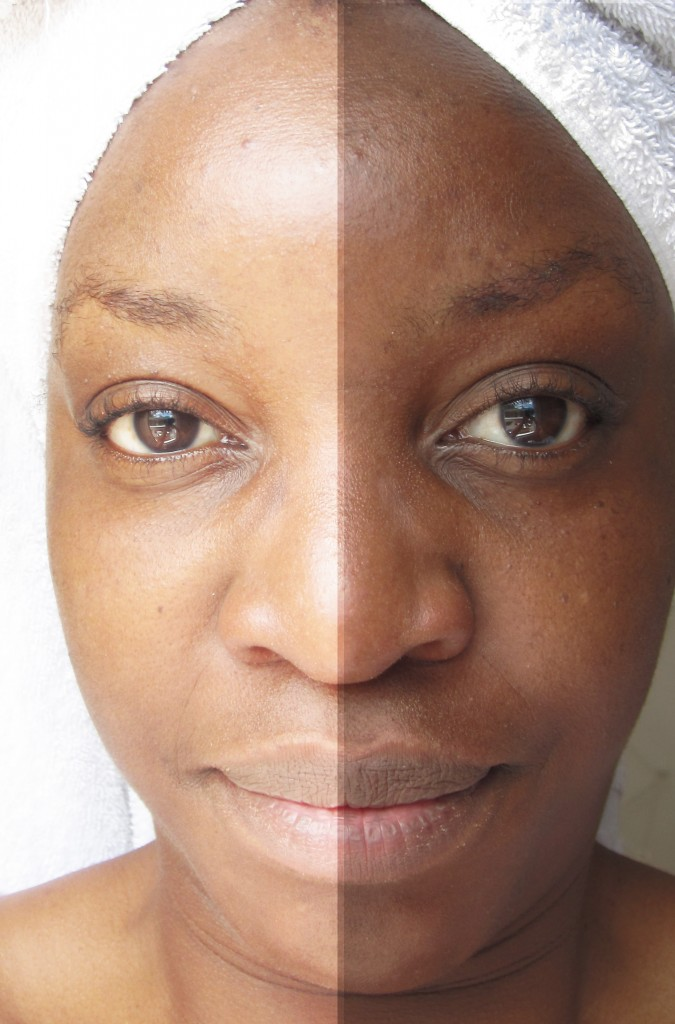 hyperpigmentation dark skin