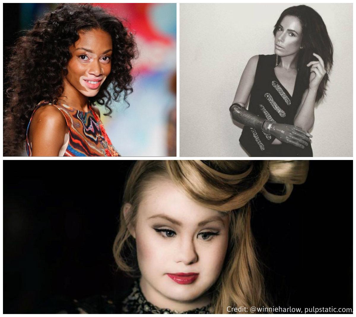 fashion week diversite diversity trisomie vitiligo handicap
