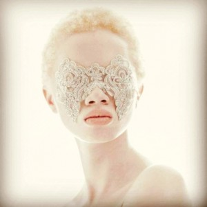 Yesterday was Inernational albinism awareness day in order o nothellip